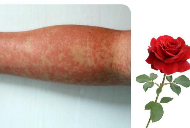 Różyczka, a może róża? Te choroby łączy podobna nazwa, a nie wygląd zmian skórnych. Częściej różyczka bywa mylona z odrą, a nawet alergią kontaktową. Zmiany na zdjęciu przypominają różyczkę, jednak są bardziej intensywne niż zwykle, miejsce plam też raczej nietypowe, ale jednak się zdarza. U dorosłych różyczka bywa bardziej nasilona, częściej niż u dzieci zdarzają się powikłania. Choćby dlatego ocenę zmian skórnych trzeba pozostawić interniście