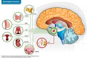 Akromegalia - choroba gigant�w