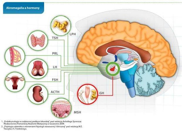 Akromegalia - choroba gigantów