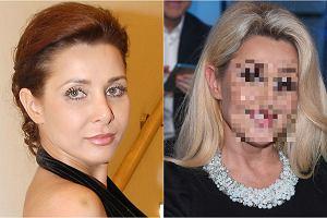 Aldona Orman ma 48 lat i wciąż jest piękna. Kiedy jednak patrzymy na jej zdjęcia sprzed kilku czy kilkunastu lat, widzimy inną kobietę. Gwiazda 'Klanu' czy 'Pierwszej miłości' ma nieco inny kształt ust, ale to nie wszystko. Zobaczcie, jak na przestrzeni lat zmieniła się jej twarz.