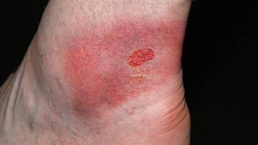 Piekące i swędzące zmiany skórne przypominające oparzenie, to najbardziej charakterystyczne objawy rumienia wysiękowego wielopostaciowego