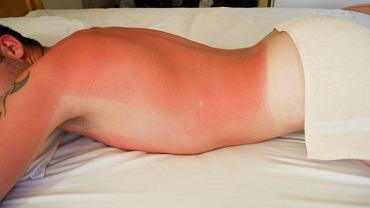 Podatność na oparzenia słoneczne może znacznie się zwiększyć po zastosowaniu niektórych leków