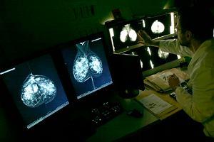 Mammografia lub USG, czyli którą metodę badań wybrać