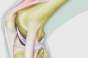 6 sytuacji, które najbardziej zagrażają kolanom [Ćwiczenia Na Kolana]