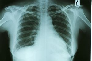 550 osób w Europie umrze dziś z powodu choroby płuc