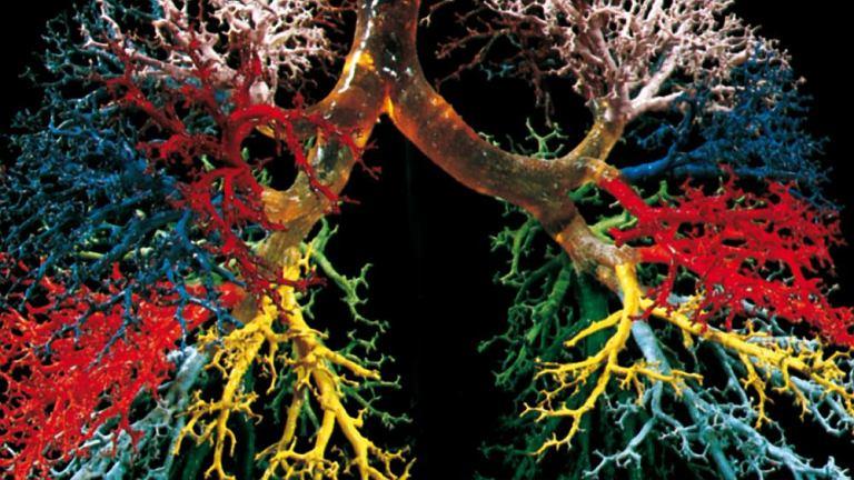 Astma. Jest to choroba drzewa oskrzelowego, przedstawionego powyżej w rekonstrukcji graficznej z kolorami w celu odróżnienia głównych odgałęzień. Od tchawicy odchodzą dwa główne oskrzela, prawe i lewe, rozgałęziające się na oskrzela płatowe (odpowiadające płatom płucnym), które z kolei dzielą się na oskrzela segmentowe (lub trzeciorzędowe), zakończone oskrzelikami z pęcherzykami płucnymi