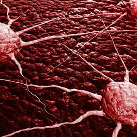 ONKOLOG - onkologia