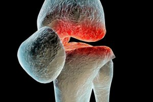 Uk�adowe choroby tkanki ��cznej