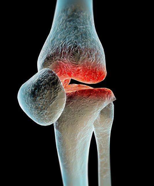 Układowe choroby tkanki łącznej