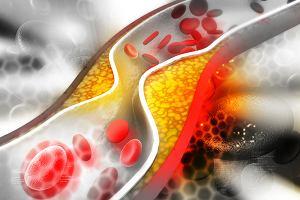 Hipercholesterolemia rodzinna: objawy, diagnoza, leczenie