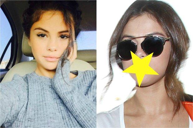 Selena Gomez nie przestaje wzbudzać emocji, a wszystko przez ostatnie zmiany, jakie zauważyliśmy w jej wyglądzie. Czy gwiazda poprawiła sobie usta?