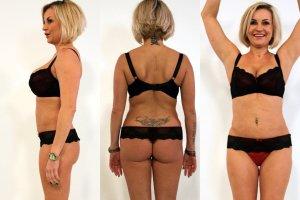 Jak liposukcja brzucha poprawia stan psychiki? Renata, która ją przeszła, tłumaczy [ZDJĘCIA PRZED I PO]
