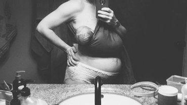 Ciało 24 godziny po porodzie