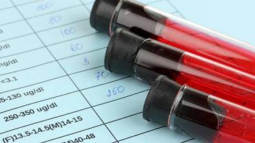 Wskaźnik RBC określa ilość czerwonych krwinek w próbce krwi