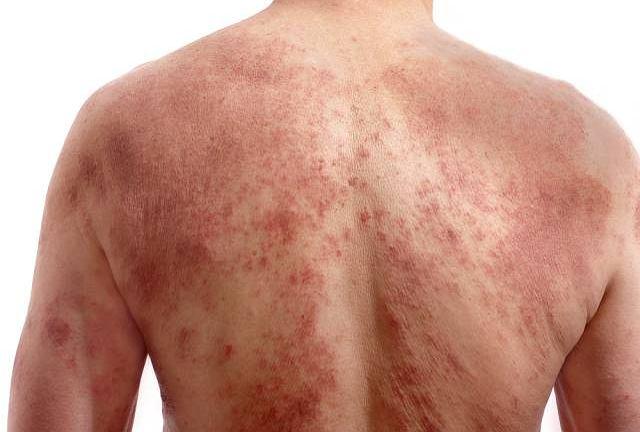 Łojotokowe zapalenie skóry może się rozwinąć niezależnie od wieku oraz stanu zdrowia pacjenta