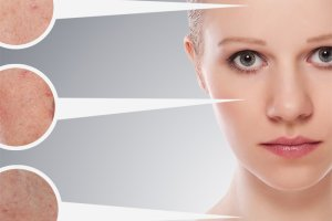 5 sposob�w na pozbycie si� blizn
