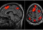 Badania techniką fMRI do kosza?
