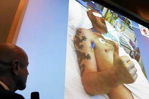 Transplantolodzy: Oby to nie by� pierwszy i ostatni przeszczep twarzy
