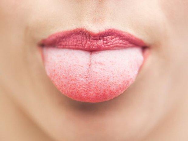 Kolor języka - cenne źródło informacji na temat twojego zdrowia