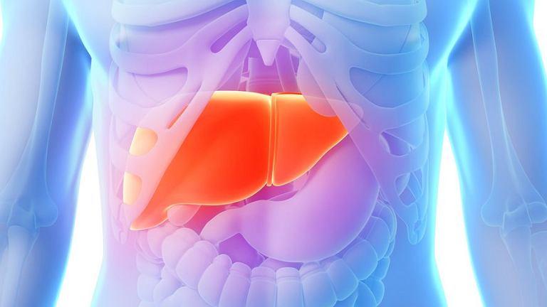 Hepatomegalia (powiększenie wątroby) może powodować spory dyskomfort z powodu nacisku na łuk żebrowy