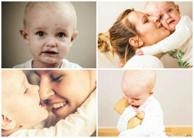 Dwuletni Kajtek pojedzie na leczenie do USA