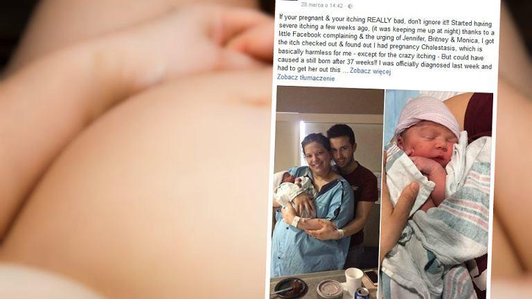 Christina DePino postanowiła ostrzec ciężarne mamy przed lekceważeniem swędzenia, które może być objawem cholestazy