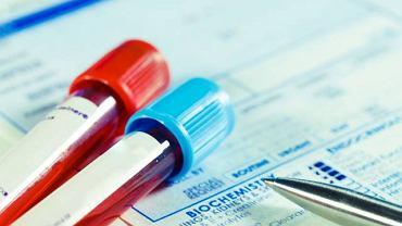 Badania hormonów przeprowadza się przy podejrzeniu wielu różnorodnych schorzeń