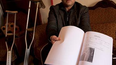 Zhou Wangyan pokazuje prześwietlenie nogi, którą dwa lata temu złamano mu podczas tortur. Do dziś porusza się o kulach