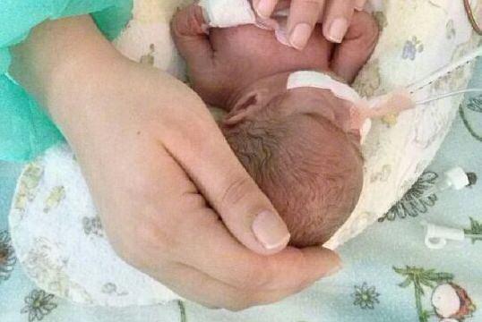 Ksawery - najmniejszy uratowany wcze�niak w polskiej neonatologii