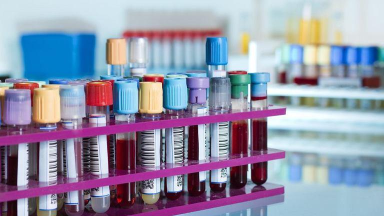 Hemoglobina glikowana - czym jest, jakie są normy?