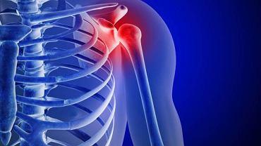 Zespół bolesnego barku to najczęściej konsekwencja uszkodzenia ścięgna łączącego łopatkę z kością ramieniową