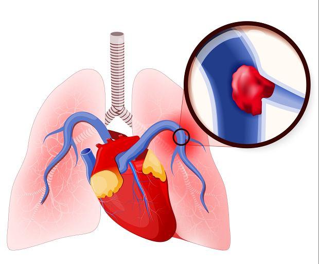 Zatorowość płucna - jakie są najbardziej charakterystyczne objawy choroby?