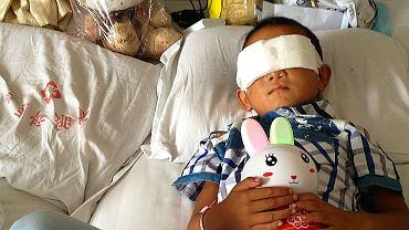 Północno-zachodnie Chiny. Ten sześcioletni chłopiec w 2013 roku trafił do szpitala bez oczu. Stracił je podczas ataku nieznanych sprawców, którzy potrzebowali jego rogówek