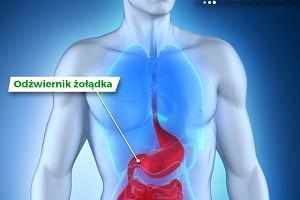 Odźwiernik żołądka - budowa, funkcje i choroby (zwężenie odźwiernika)