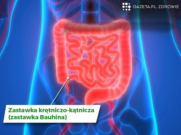 Zastawka krętniczo-kątnicza (zastawka Bauhina) - budowa, funkcje i choroby