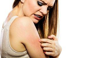 Sucha skóra, oczy, włosy. Wina ogrzewania czy objaw choroby?