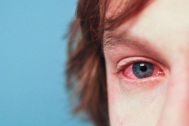 Histamina to pośredni powód pojawienia się objawów alergii