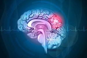70 tys. Polaków doznaje co roku udaru mózgu, a statystyki mogą się pogarszać