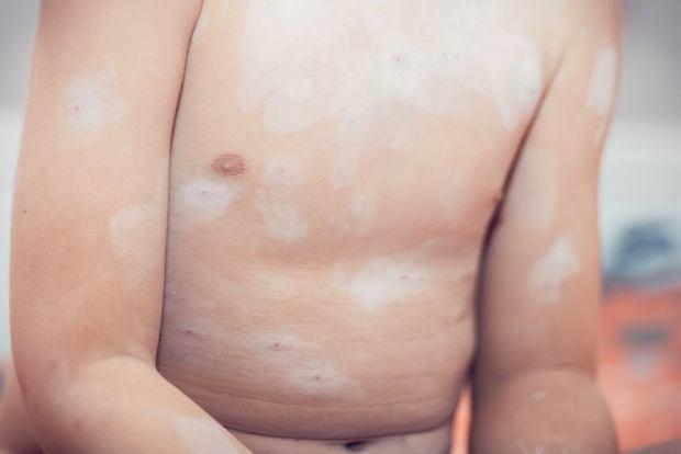Wysypka na brzuchu u dziecka: co może oznaczać?
