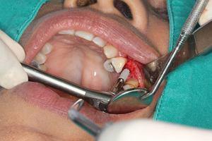 Nowe z�by - czy implanty wiernie na�laduj� natur�?