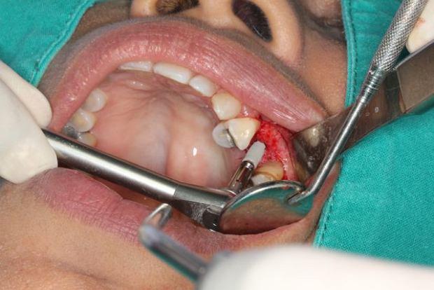 Nowe zęby - czy implanty wiernie naśladują naturę?