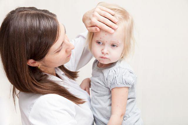 Różyczka jest chorobą zakaźną dzieci, ale może też wystąpić u osób dorosłych