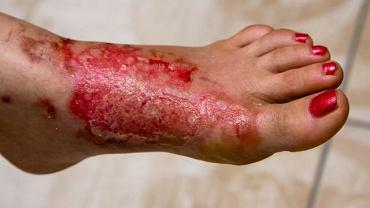 Oparzenia chemiczne pojawiają się w wyniku kontaktu skóry z substancjami żrącymi