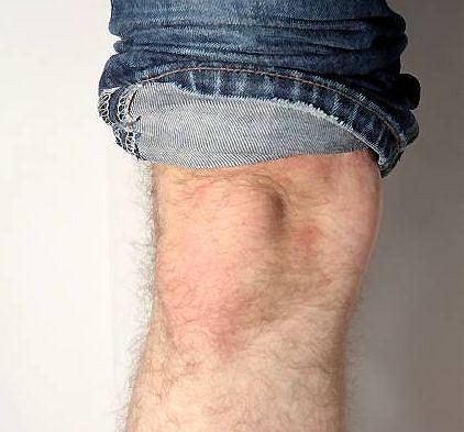 B�l w okolicy kolana przeszkadza w bieganiu