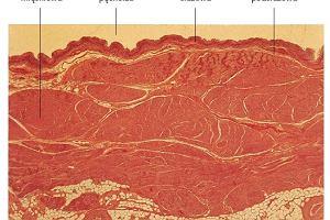 P�cherz moczowy neurogenny