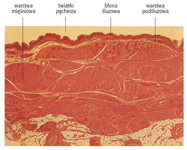 Pęcherz moczowy neurogenny