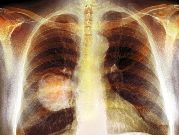 Raka płuca. Nowe metody leczenia