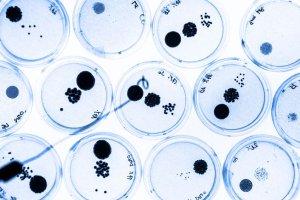 Nie zostawi�e� odcisk�w palc�w, zdradz� ci� bakterie