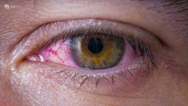 Zapalenie spojówek, oko