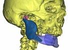 Implant z drukarki 3D powsta� w Bia�ymstoku. Pierwszy w Polsce